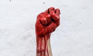 O caso do aborto de Alagoinha: morte e manipulação
